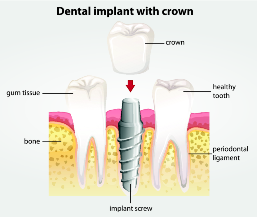 Diagram of dental implant | Edmonton AB Dentist