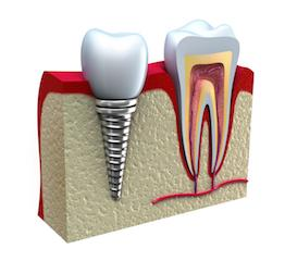 Dental Implants Edmonton AB