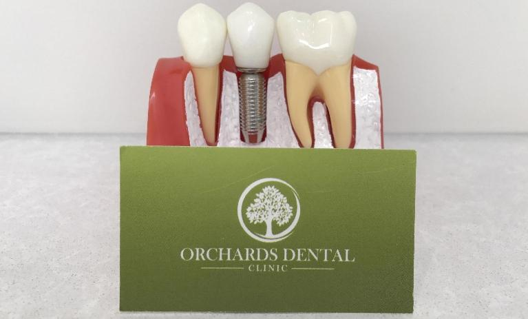 Dental Implant Diagram | Orchards Dental Clinic