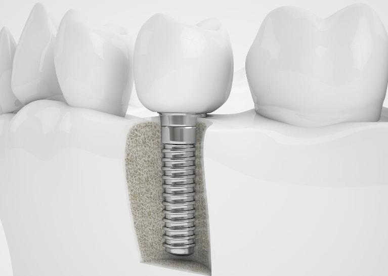 Illustration of dental implant | Dentist Edmonton AB