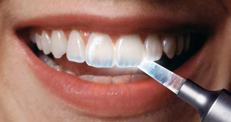 tooth enamel erosion treatment edmonton
